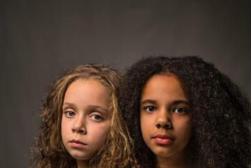 """Identical Twins, One Black & One White, Fascinate Researchers As """"Miracles"""""""